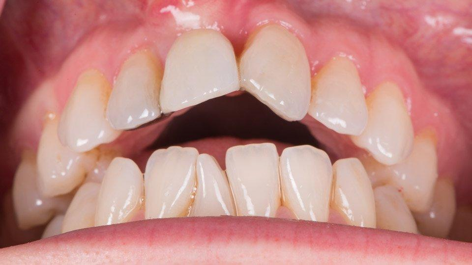 Avopurennassa etuhampaat eivät pure yhteen ja purenta on edestä katsottuna auki.