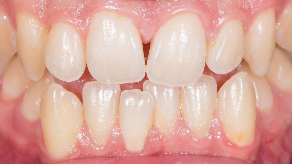 Hampaiden ahtaus ja kiertyminen