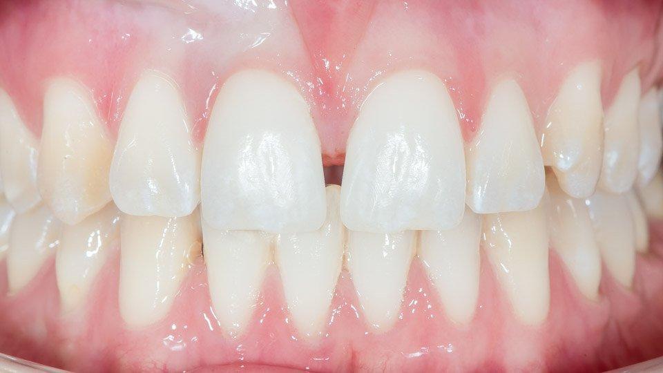 Hammaslaminaatti eli hammaskuoret helsinki.