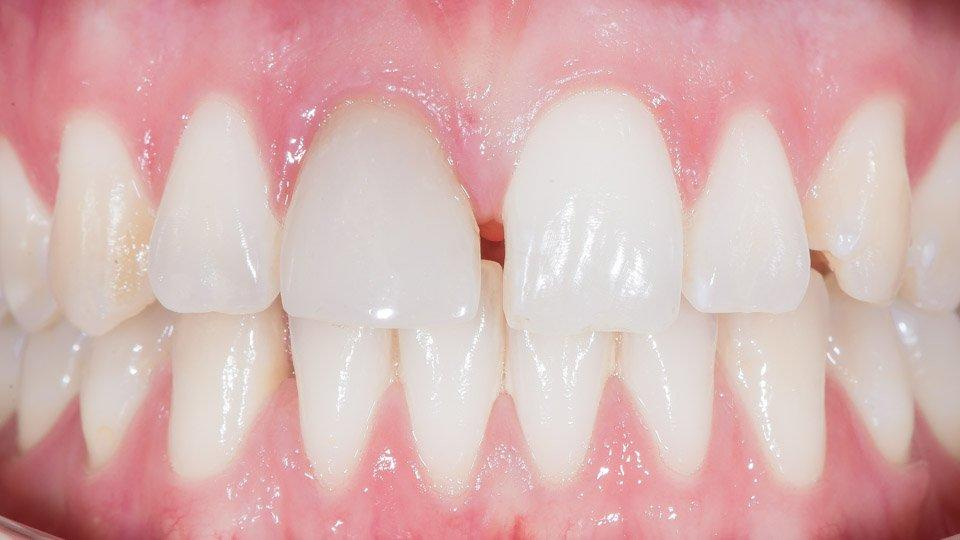 Etuhampaan hammaslaminaattityö ennen hoidon aloitusta.