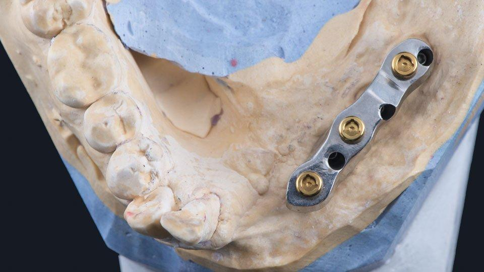 Implantit ja peittoproteesi
