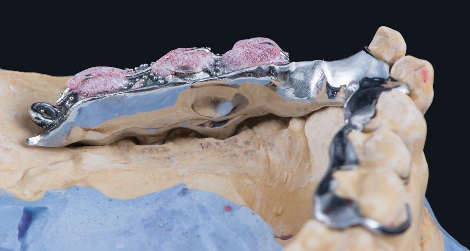 Titaaninen kisko ja metallirunkoinen osaproteesi