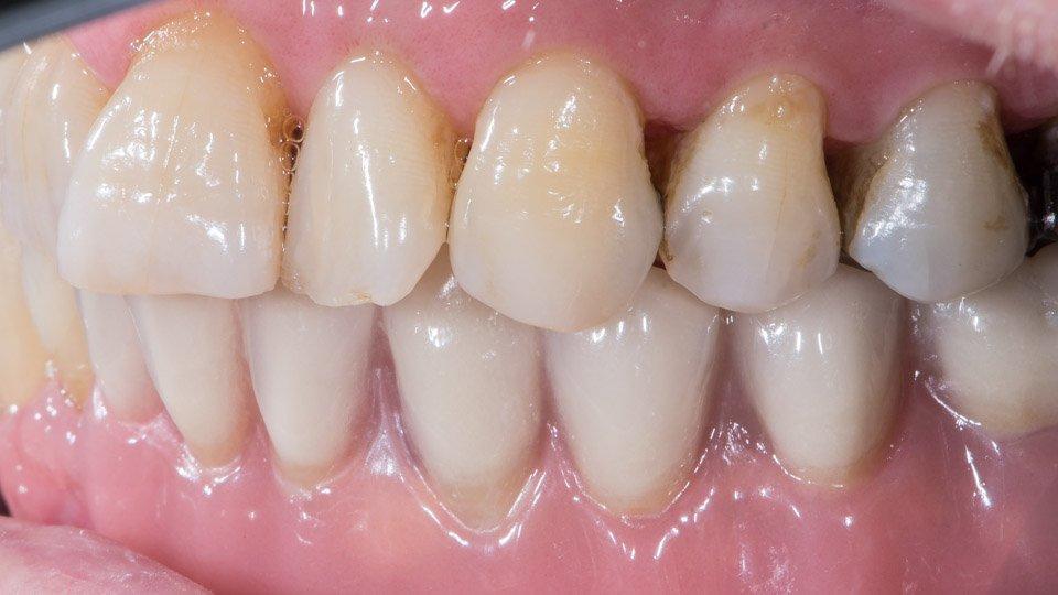 Valmis proteesi hammasimplantteihin kiinnitettynä.