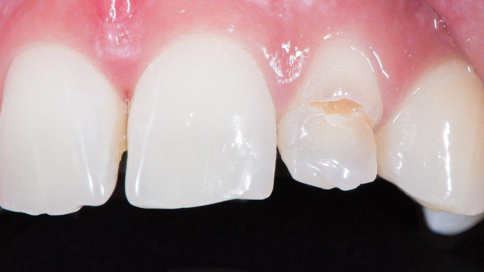 Etuhampaan vaurio, jonka vuoksi tehtiin posliinikuoret hampaisiin.