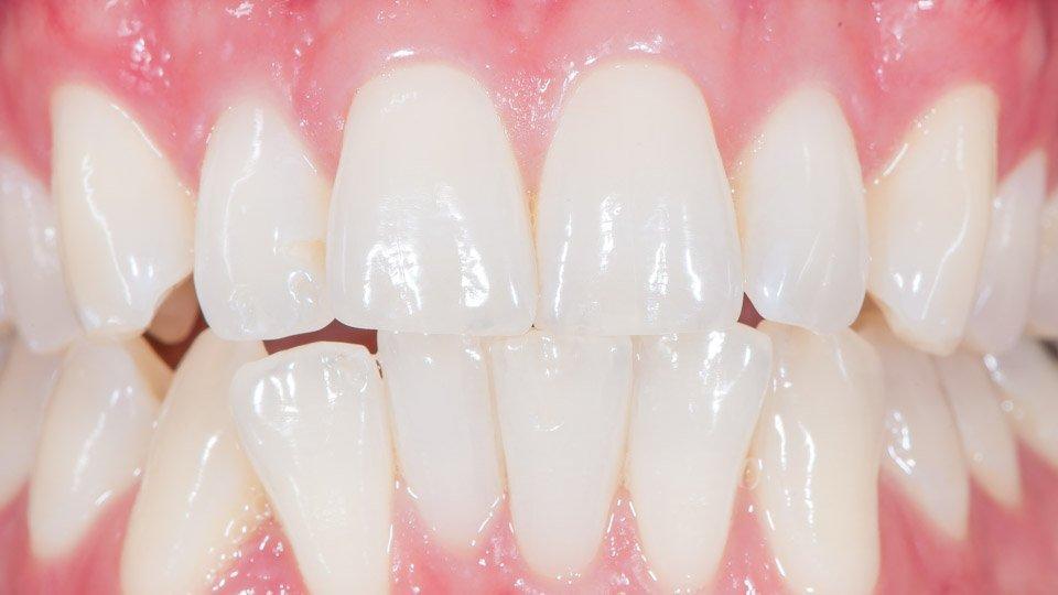 Miesten hammaslaminaatit tehdään kulmikkaammiksi kuin naisten.