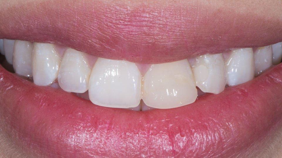 hammaslaminaattien valmistus ja kokemuksia hoidosta