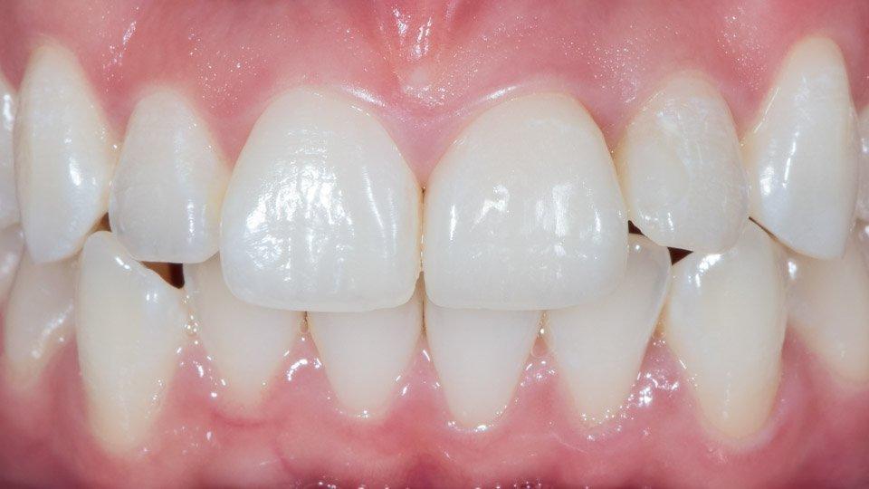 hyvä hammaslääkäri helsingistä tekemään laminaatteja