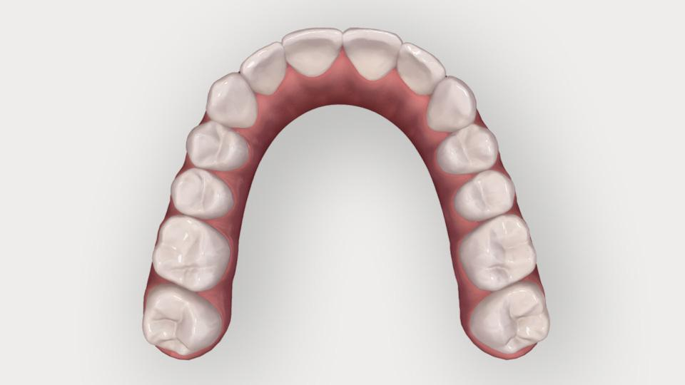 Invisalign Comprehensive -oikomishoito