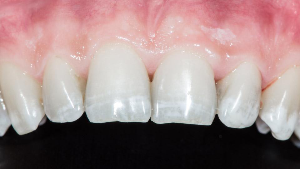 Fluorin liikasaanti hampaiden kehitysvaiheen aikana saattaa aiheuttaa valkoisia, opaakkeja muutoksia hampaiden pinnoille.