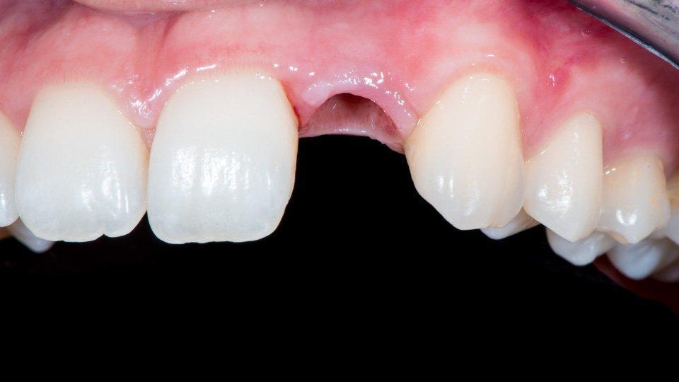 Hammaspuutos ennen hammasimplantin päälle rakennettavan kruunun kiinnitystä.