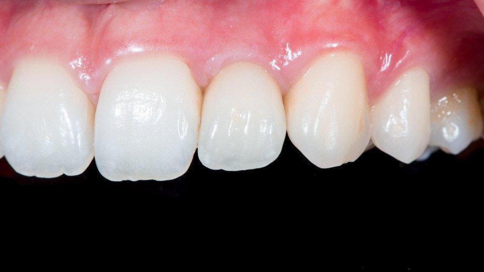 Valmis implanttikruunu keinojuureen eli implanttiin kiinnitettynä.