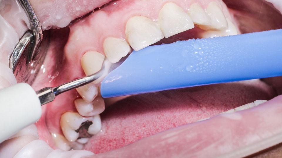 Hammaskiven poisto voidaan tehdä esimerkiksi ultraäänilaitteella tai terävällä hammaskiven poistoinstrumentilla.