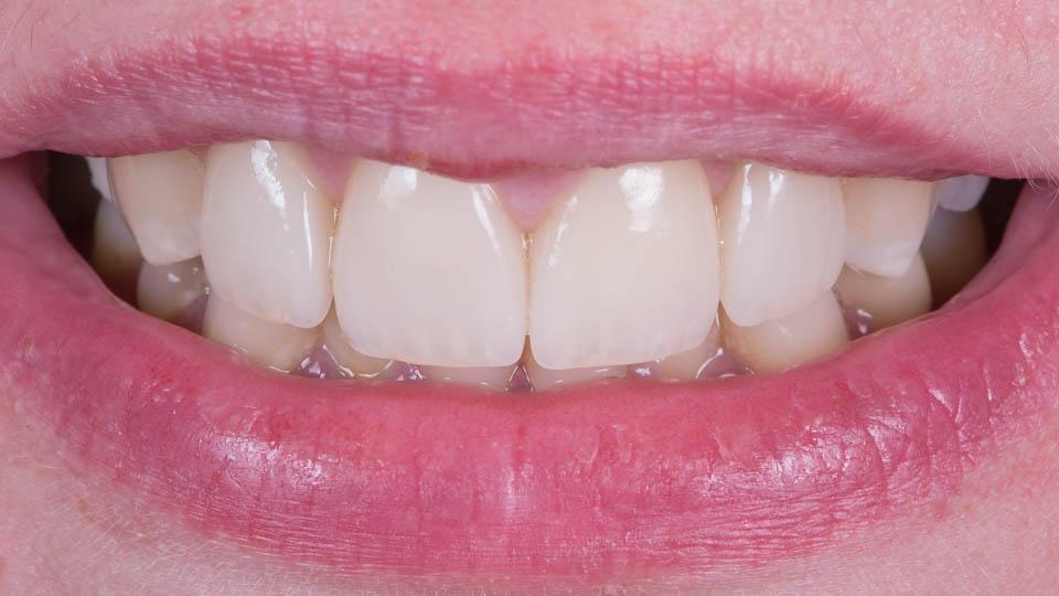 Hampaat keraamisten laminaattien jälkeen.