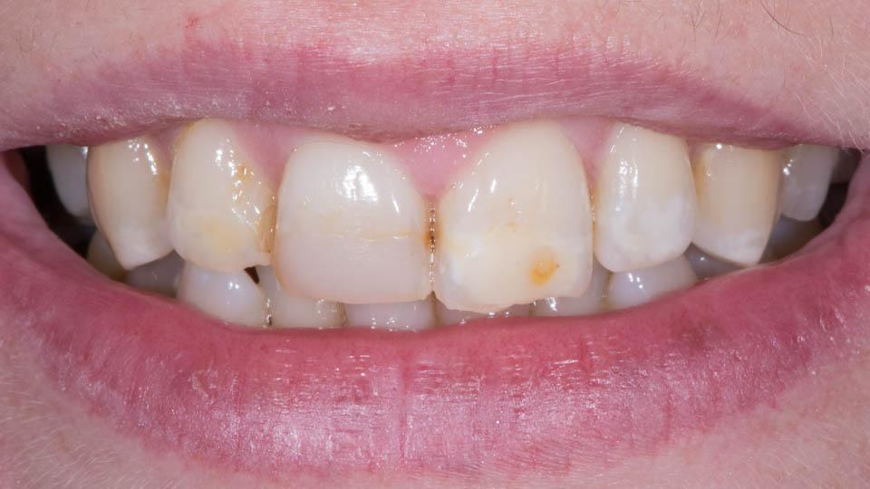 Hampaat ennen keraamisia laminaatteja