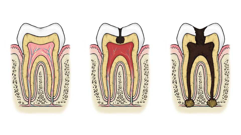 Hampaan juuren tulehdus voi johtaa hampaan poistoon.