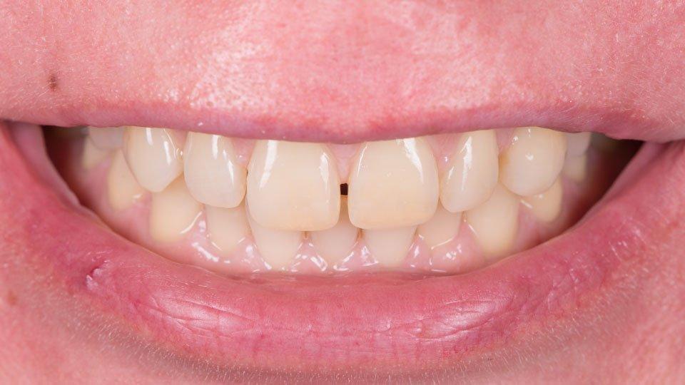 hampaiden korjaus muovilla