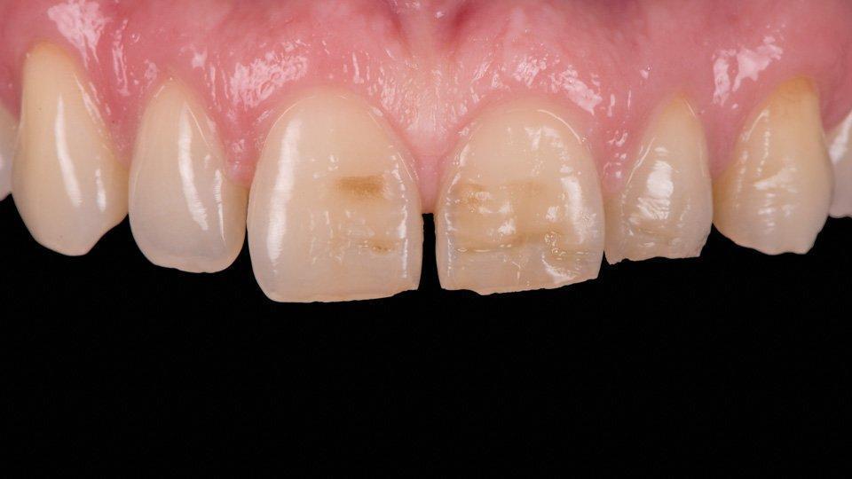 Hampaiden päällystäminen tai laminointi muovilla