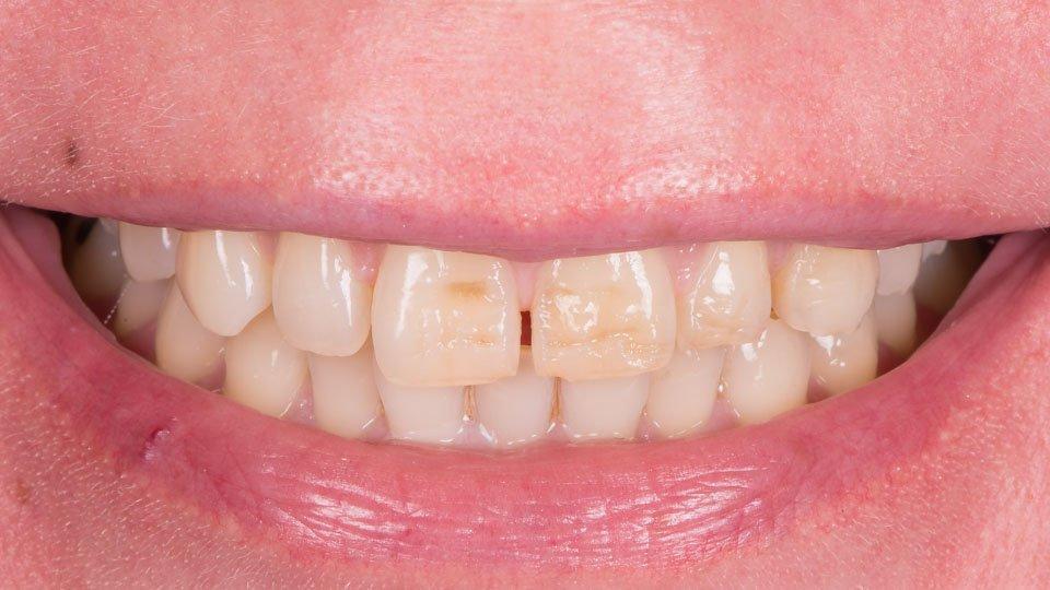 Hampaiden korjaus paikka-aineella.