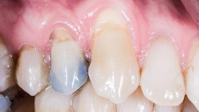 Liian voimakas harjaaminen voi aiheuttaa ikenien vetäytymistä ja heikentää kiillettä. Heikentynyt kiille altistaa hampaiden reikiintymiselle.