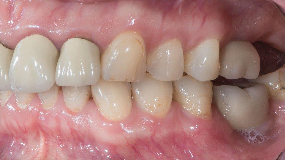 Yleinen ongelma hammasimplanttihoidossa; kruunu on tehty liian matalaksi.