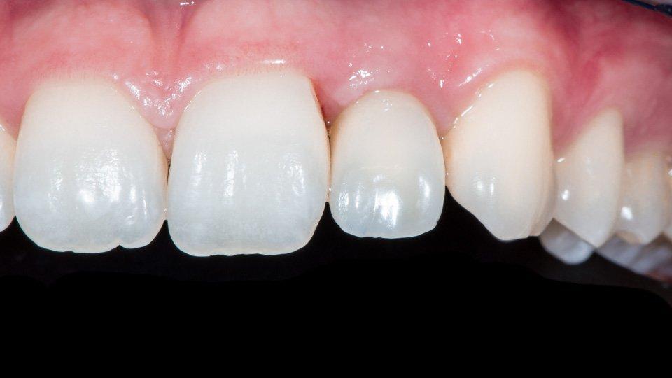 Väliaikainen implanttikruunu suussa.