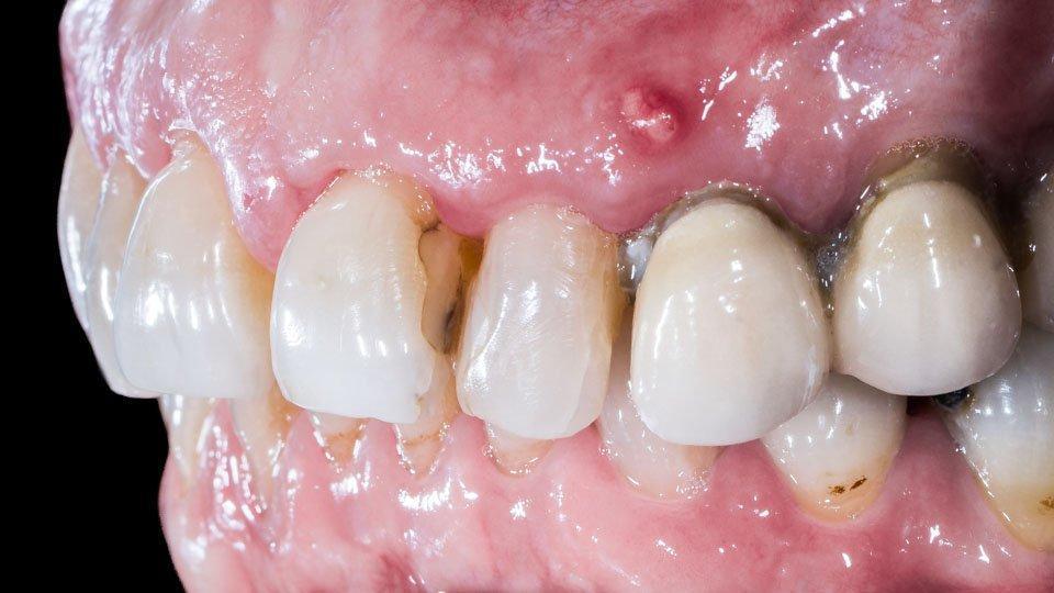 Fisteli on usein merkki hampaan juuren tulehduksesta. Tulehtunut hammas täytyy usein juurihoitaa.
