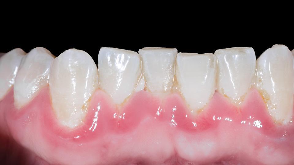 Hammaskivi aiheuttaa ientulehdusta. Ientulehdus voi näyttää samalta kuin parodontiitti.