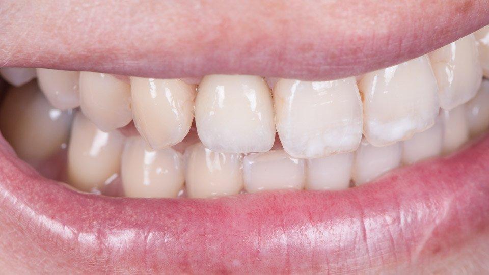 hammasimplantti, titaaniruuvi leukaluuhun