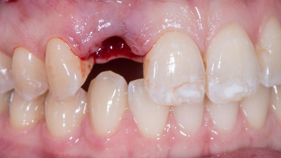 Tilanne hampaan poiston jälkeen.