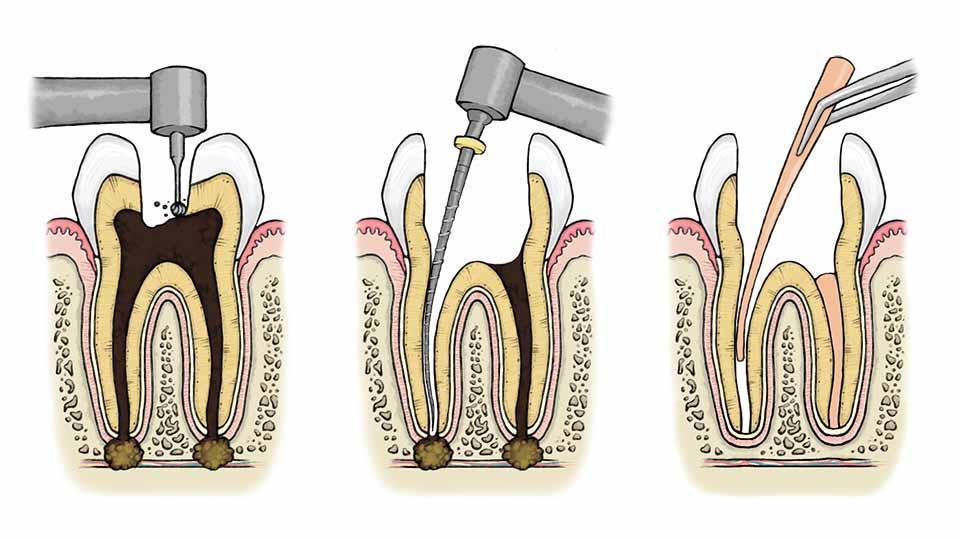 Hampaan juurihoito vaatii useita käyntikertoja. Hammassärky helpottuu.