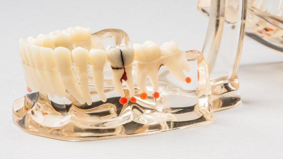 Hampaan juuren tulehdus, hammaskipu ja hammassärky. Juurihoito.