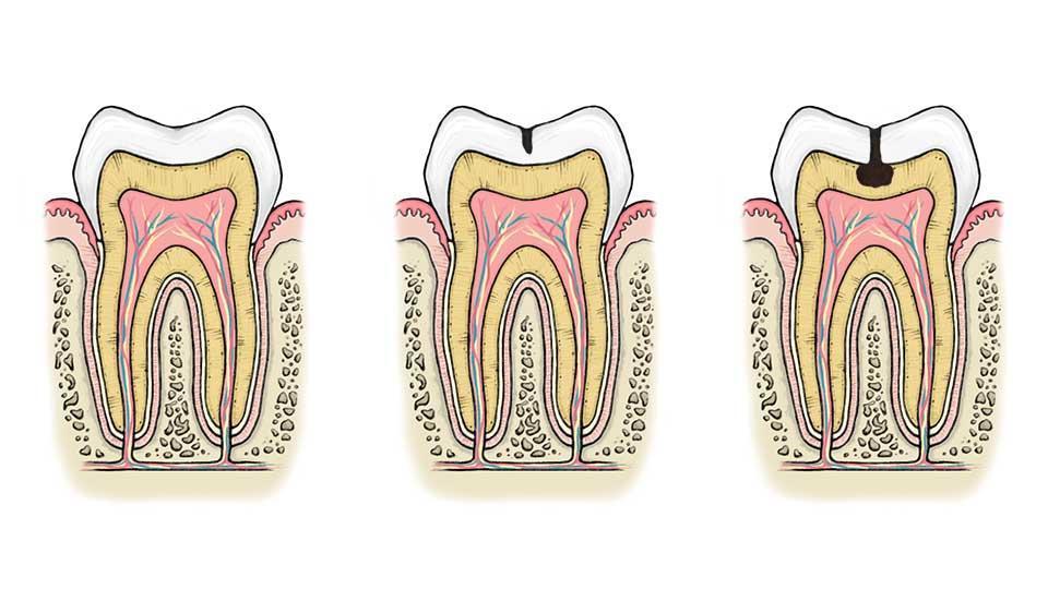 Alkava reikä hampaassa voi aiheuttaa vihlontaa. Jos karies ulottuu hammasluun puolelle, reikä täytyy paikata.