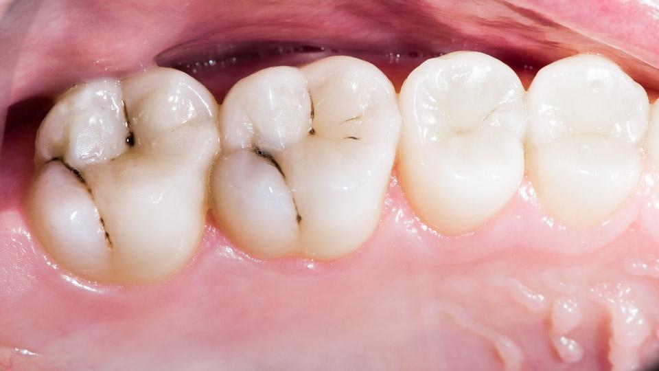 Karies ja hampaan reikä hoidetaan paikkauksella. Karies hampaassa sijaitsee yleensä takahampaassa.