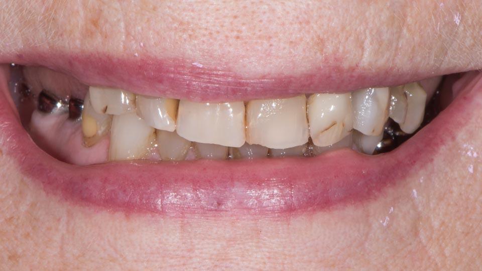 Kuva ennen hammasimplanttihoitoa.