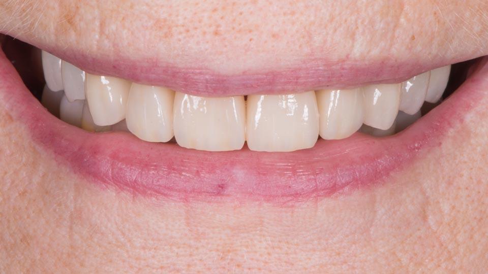 Kuva hammasimplanttihoidon jälkeen. Hoito on toteutettu sekä Helsingissä että Vantaalla.
