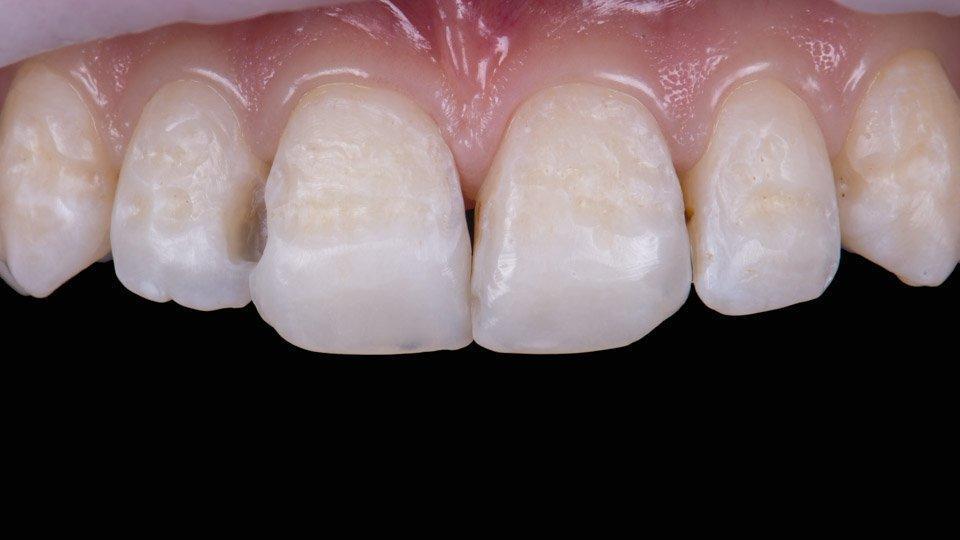 Hampaiden muotoilu paikka-aineella hinta
