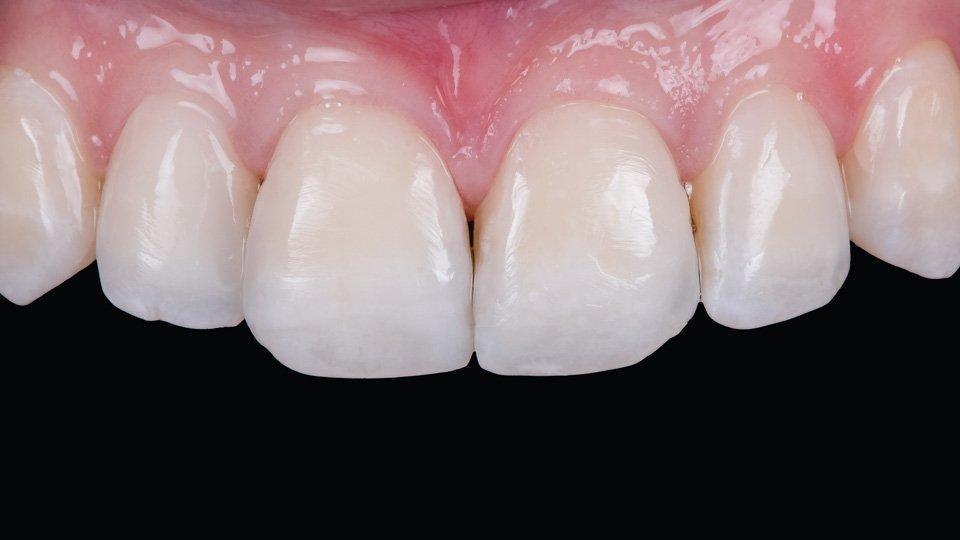Hampaiden esteettinen korjaus