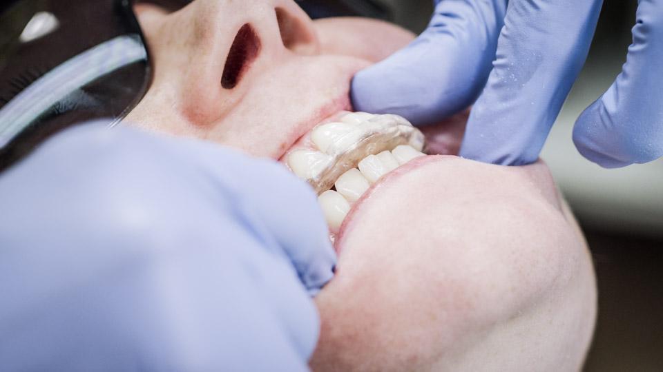 Hampaiden narskuttelu ja purentakisko, helsinki.