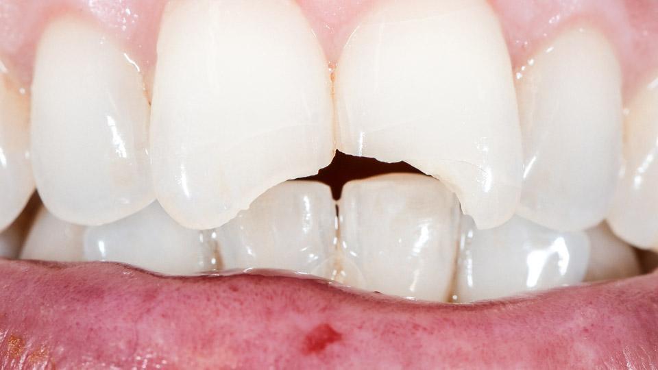 Äkillinen ja kova hampaan lohkeaminen voi aiheuttaa hammassärkyä ja hammaskipua.