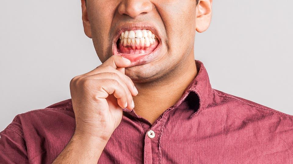 Pahanhajuinen hengitys voi olla merkki suu- ja hammassairauksista kuten ien- ja hammastulehduksista. Haiseva hengitys voi tällöin johtua suun bakteereiden tuottamista, pahanhajuisista rikkiyhdisteistä.