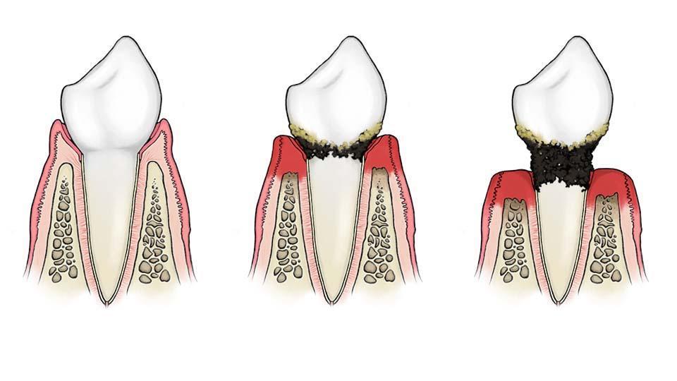 Parodontiitin oireet ja hoito. Hampaan kiinnityskudosten tulehdussairaus.