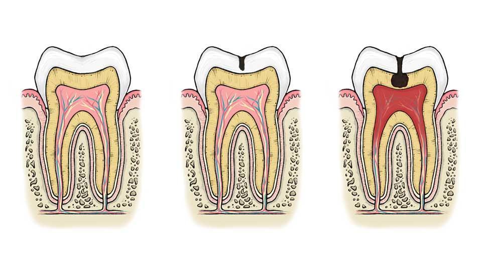 Pulpiitin eli hampaan ytimen tulehduksen aiheuttaa yleensä syvälle hammasluuhun edennyt karies. Kuvitus: Joanna Amemori.