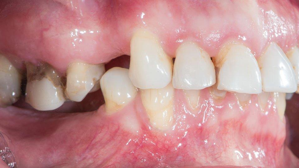 Jos puuttuvaa hammasta ei korvata, purenta voi muuttua ja hampaat liikkua.