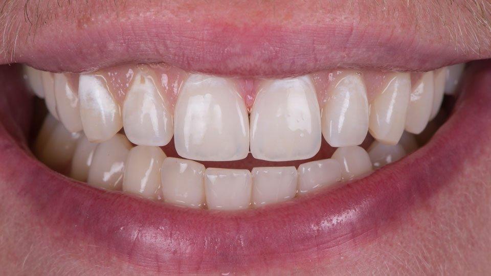 Hampaiden ienrajoissa on valkoiset laikut.
