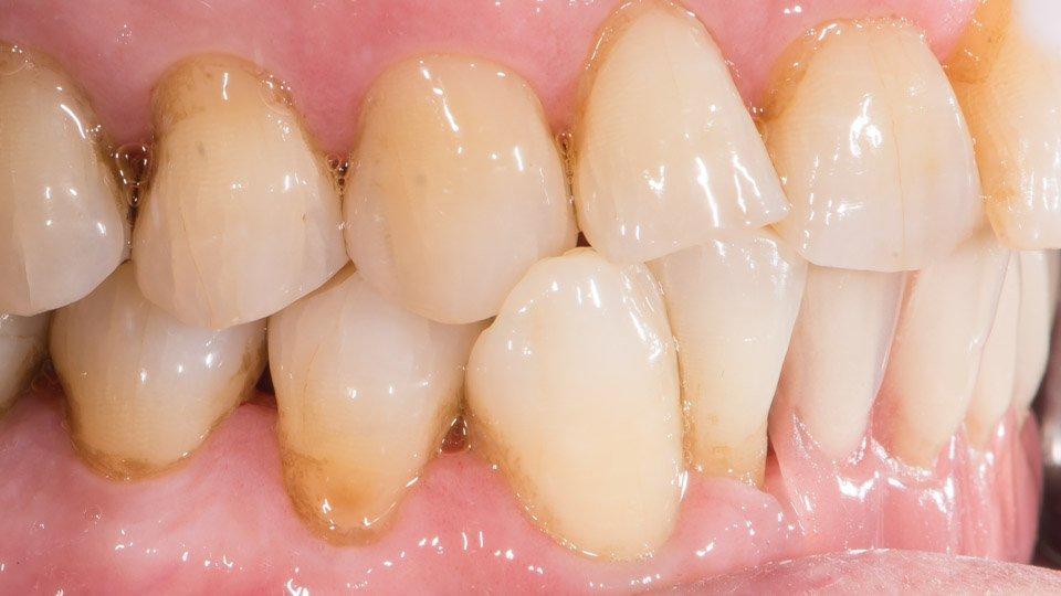 Hampaiden ristipurenta