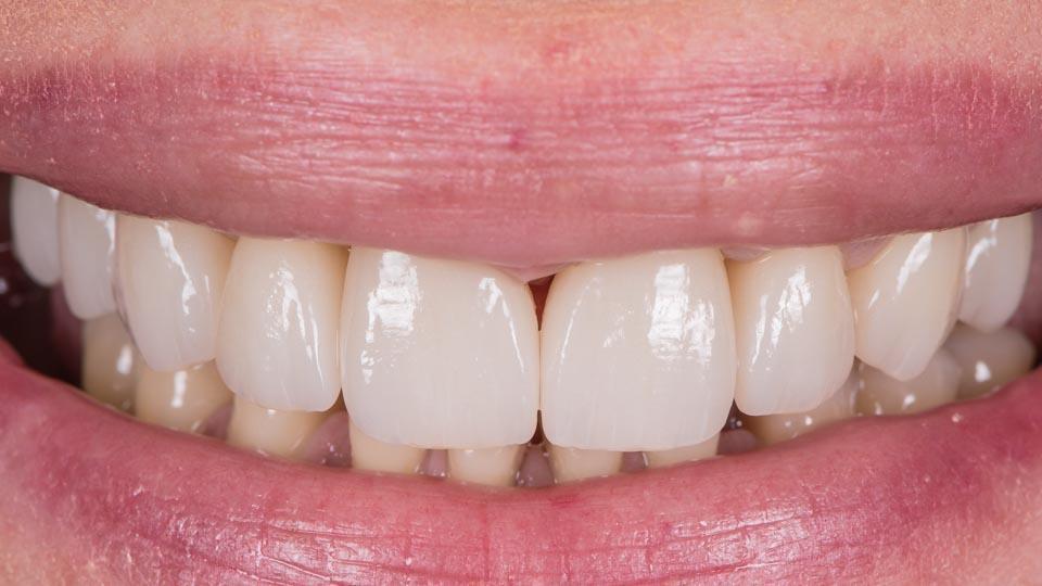 zirkoniakruunut hampaisiin, helsinki, STML Katana