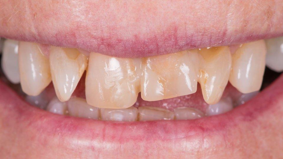 Yhden hampaan silta tehty zirkoniasta