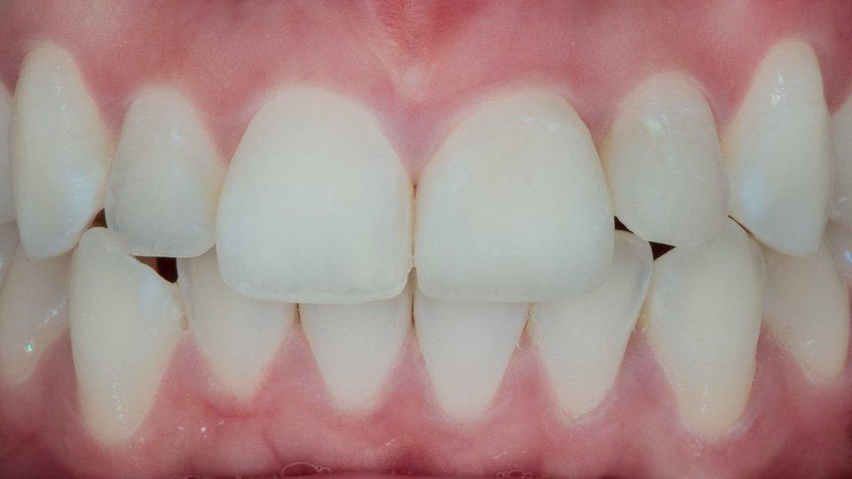 hammaskuoret tai laminaatit tallinna