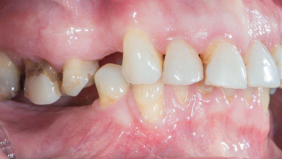 Hampaan poiston jälkeen alahampaita ei ole korvattu. Hampaan poisto helsinki.