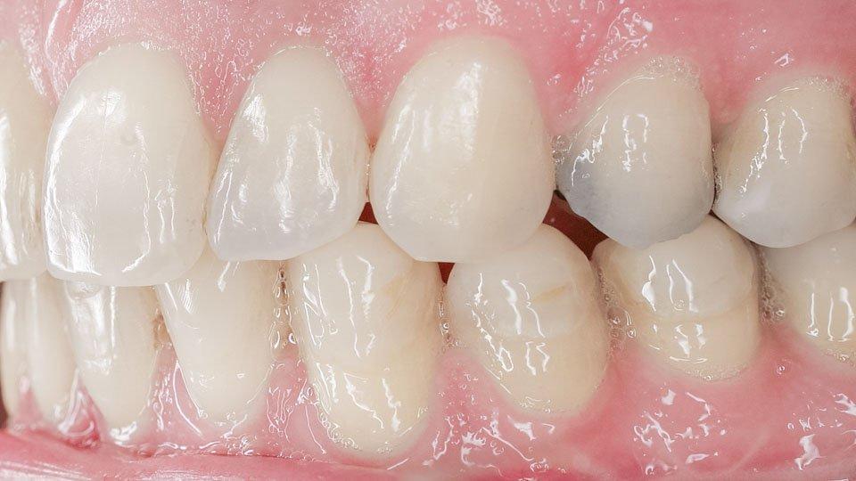 Huonokuntoiset muovipaikat päätettiin korvata hammaskuorilla.